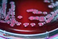 VRBG rodac E.coli Graso 856A